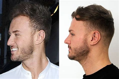 Kyle christie in image overhaul after nose job and hair