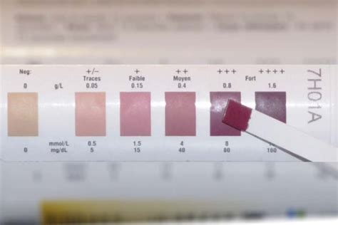 Measuring Ketosis With Ketone Test Strips: Are They Accurate?